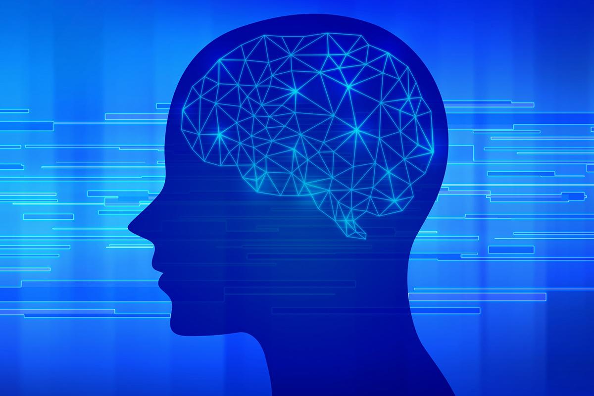 パーキンソン症の脳イメージ
